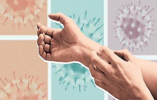 پوست انسان هدف اصلی کروناویروس